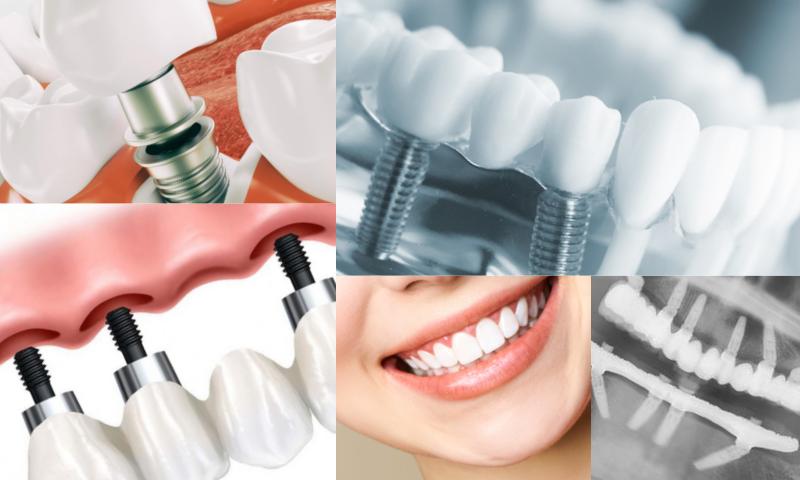 Gülüş Tasarımı İçin Uygulanan Tedavi Yöntemleri Nelerdir?