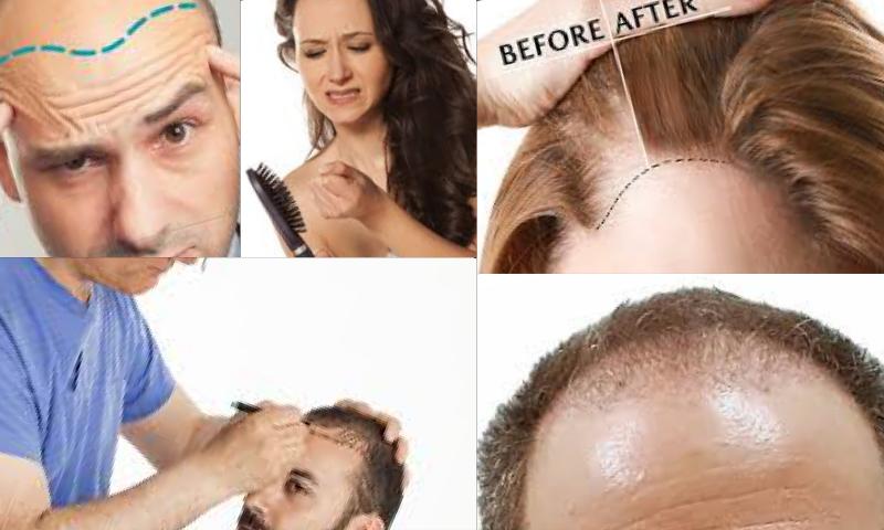 Best Hair Transplant Clinic İn Turkey Türkiyedeki En İyi Saç Ekim Kliniği