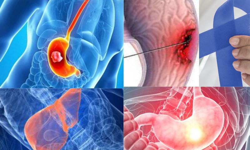 Karaciğer Kanser belirtileri