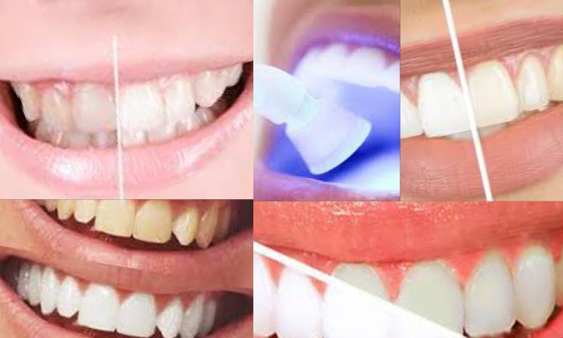 Çapraşık Diş ve Kapanış Kusurları Nasıl Tedavi Edilir