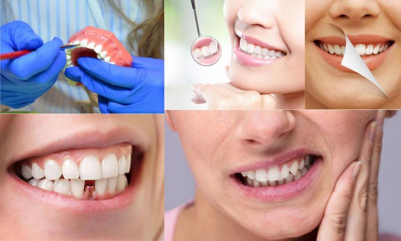 Diş Eksikliklerinde Uygulanan Tedavi Yöntemleri